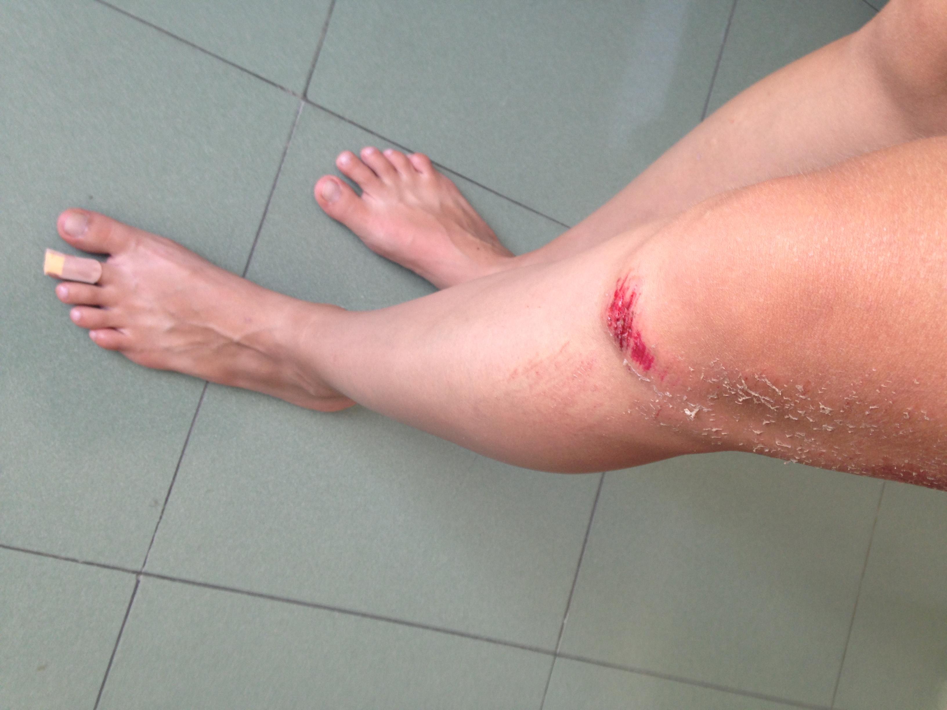 Травма коленки